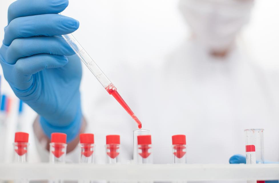 Research Focuses on Proposed Adalimumab Biosimilars